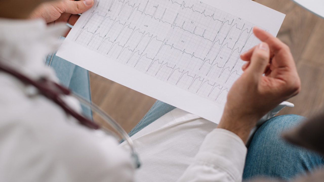 Electrocardiograma IA